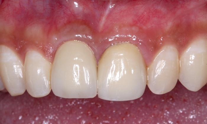 Dental Implants with crown | Trung Pham DMD