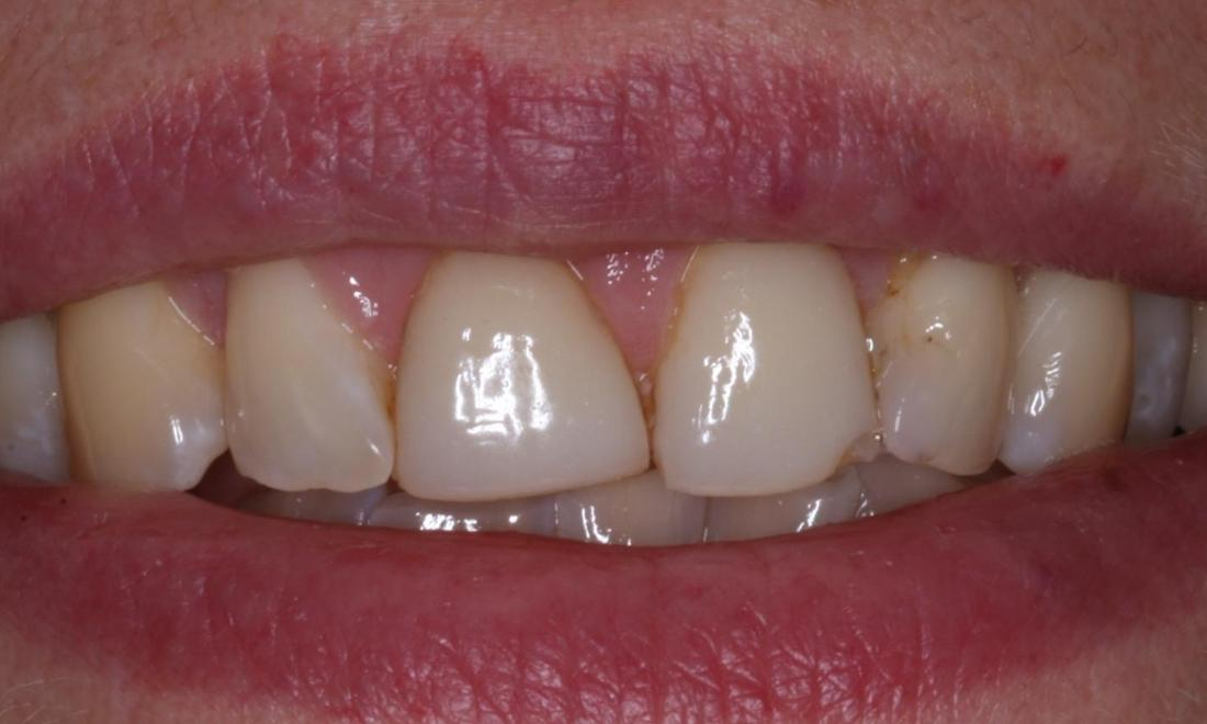 Cosmetic Dentisty Patient | Trung Pham DMD